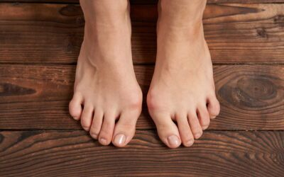 Bunion surgery – is it really that painful?
